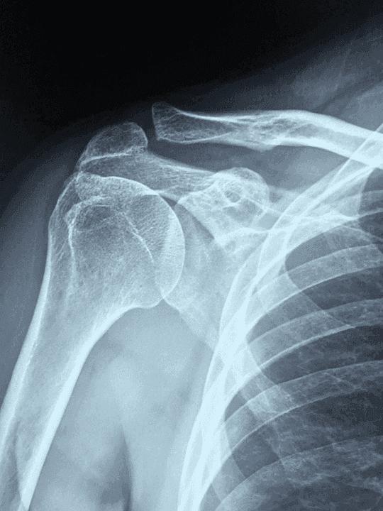 frozen shoulder diagnosis